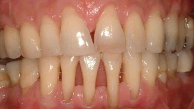 Корни зубов фото