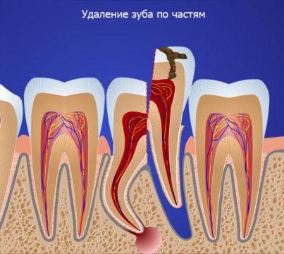 Осколок зуба и его удаление фото