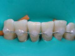 Для чего проводится шинирование зубов?