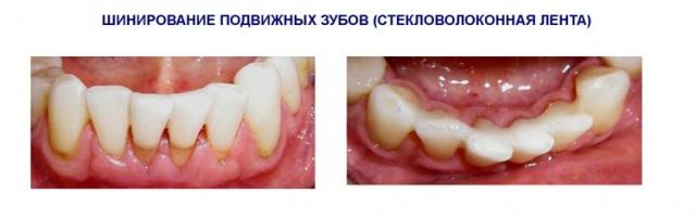 Шинирование подвижных зубов фото