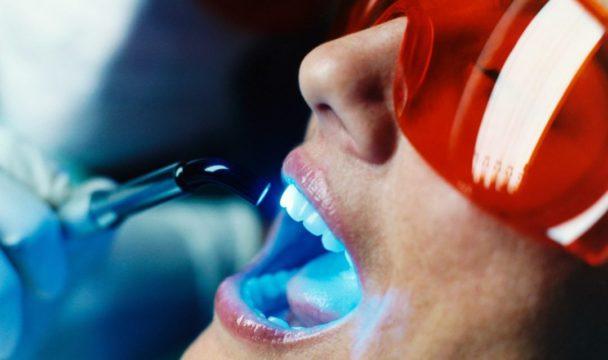 Отбеливание зубов-1