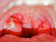 Когда стоматит заразен и как он может передаваться?