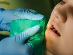 Когда и для чего проводится депульпирование зуба?