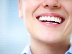 Белоснежная улыбка: всё про отбеливание зубов
