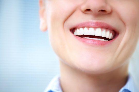 Отбеливание зубов-4