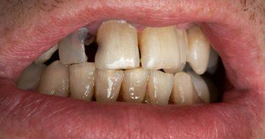 Как лечить гнилые зубы?