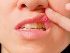 Как избавиться от стоматита на губе?