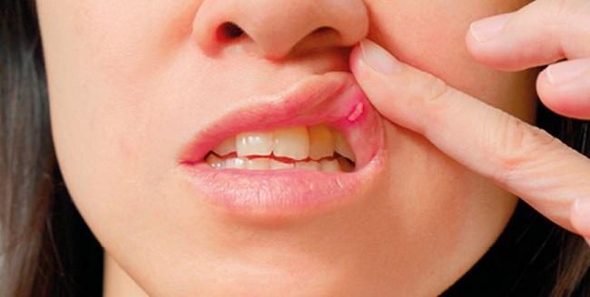 Стоматит на губе-2