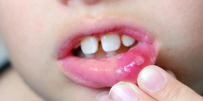 Стоматит на губе-1