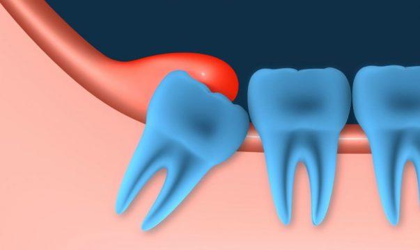 Зубы мудрости в челюсти фото
