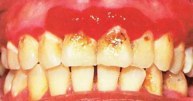 Симптомы и способы лечения гингивита у детей: гипертрофическая, катаральная и герпетическая формы заболевания