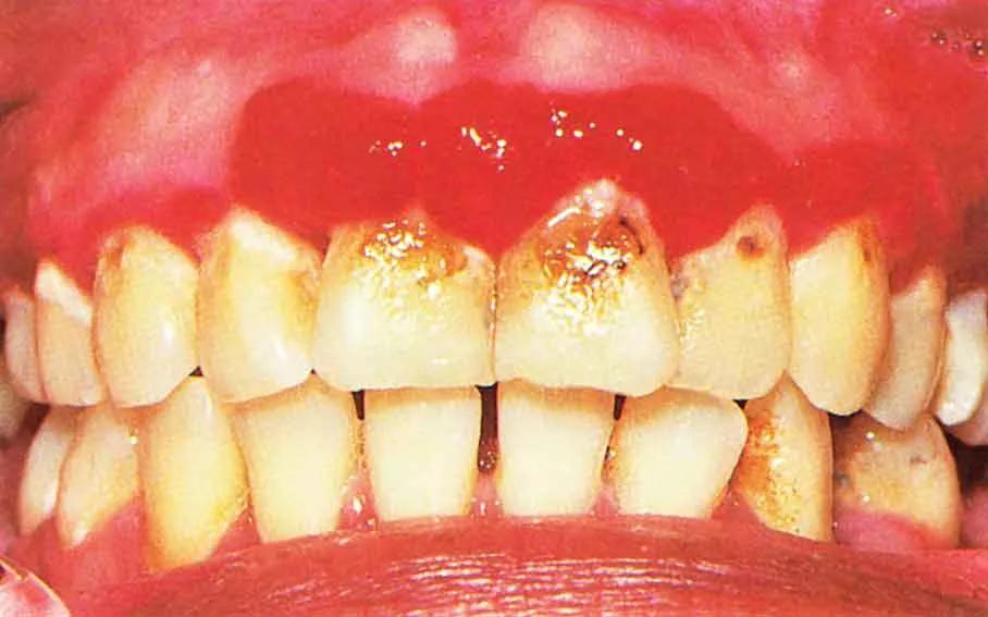 гингивит у детей симптомы и лечение фото