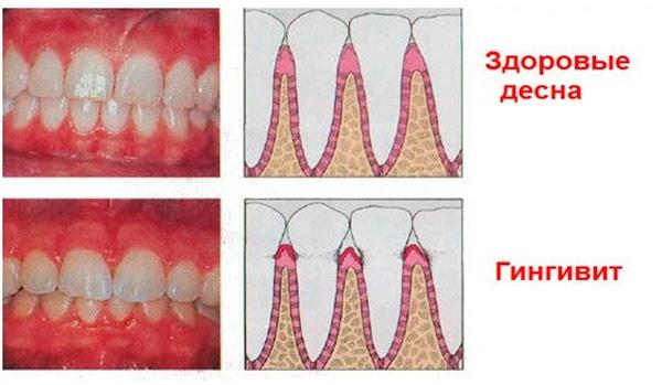 воспаление десны около зуба фото