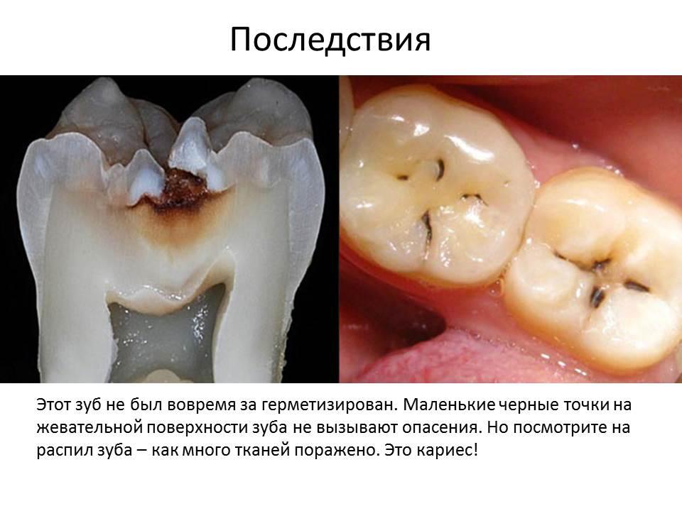 что такое запечатывание фиссуры зуба фото