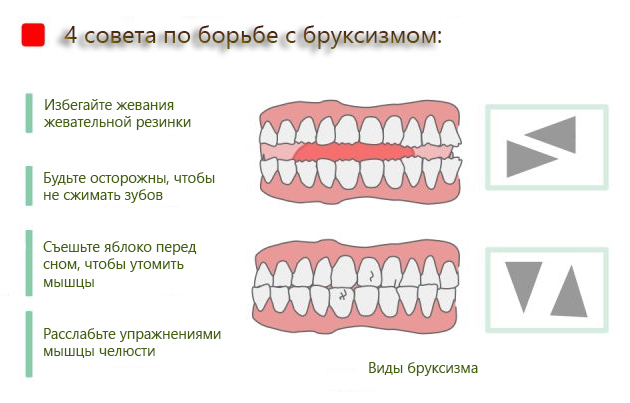почему дети во сне скрипят зубами фото