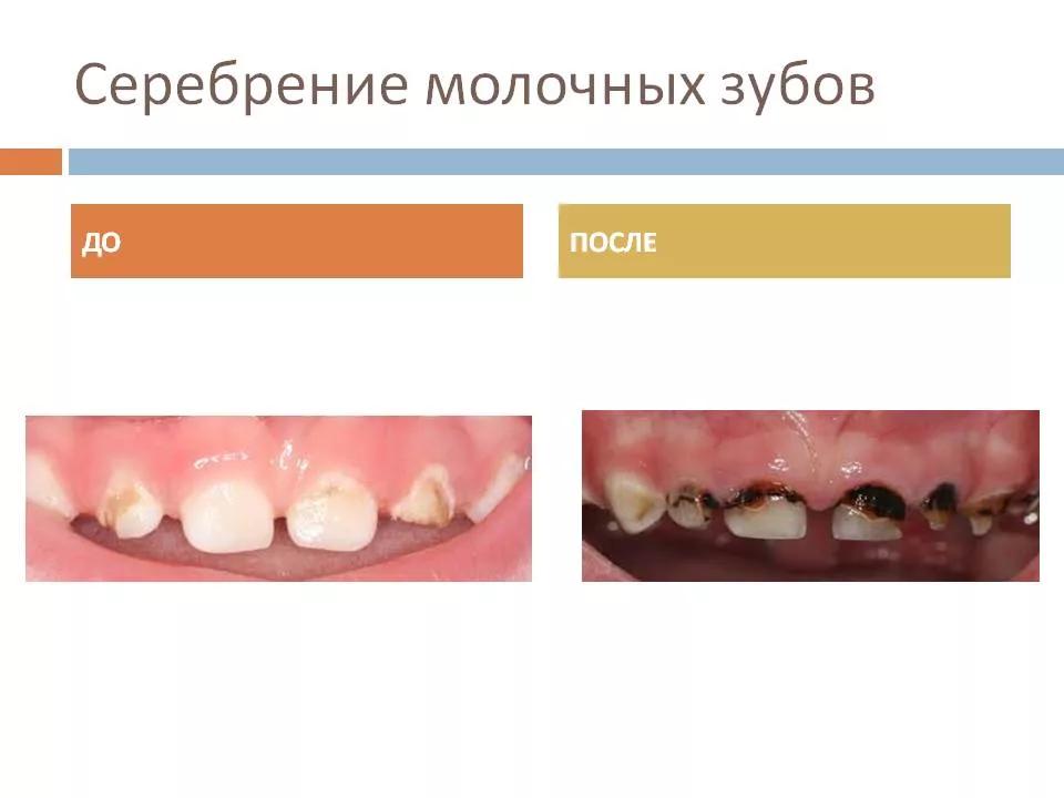 серебрение молочных зубов у детей фото