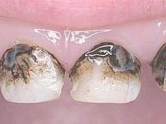 Зачем нужно посеребрение молочных зубов у ребенка: в каких случаях применяется данный метод и что говорит Комаровский