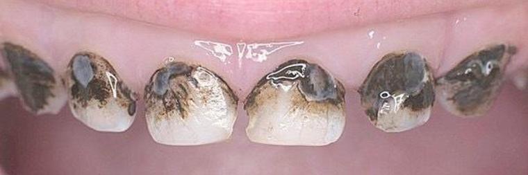 серебрение в стоматологии фото